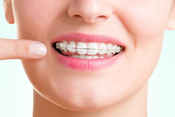 で 自分 前歯 矯正 前歯が閉じない… 矯正治療で一番難しい症例:コメット歯科の医療情報:岐阜市